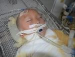 Ngã vào nồi cám lợn, bé 6 tuổi bị bỏng sâu 65% cơ thể
