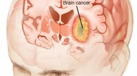 Sử dụng điện thoại nhiều tăng nguy cơ ung thư não