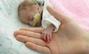 Sức sống thần kỳ của em bé chào đời chỉ nặng 700g