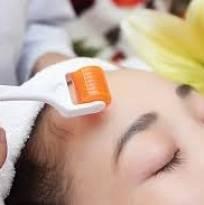 Phương pháp trị sẹo rỗ lâu năm