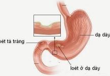 Chế độ sinh hoạt cho người bị bệnh đau dạ dày