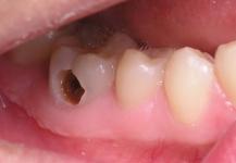 Sâu răng không phải lo lắng