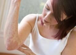 Cách điều trị bệnh chàm eczema hiệu quả