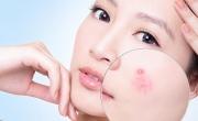 Mặt nạ yến mạch trị thâm cực hiệu quả