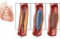 Đặt stent mạch vành nh...
