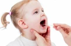Lưu ý khi chăm sóc bé 3 tuổi bị viêm amidan