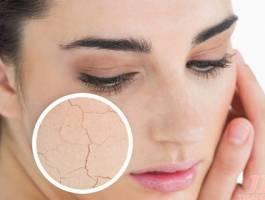 Nguyên nhân da bị nứt nẻ và biện pháp phòng tránh