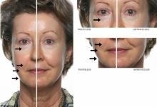AGELOC | Công nghệ chống lão hóa số 1 thế giới của Nuskin